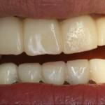 歯を残す治療