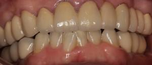 セラミックの白い歯