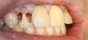 前歯のむし歯