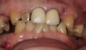 ひどい虫歯