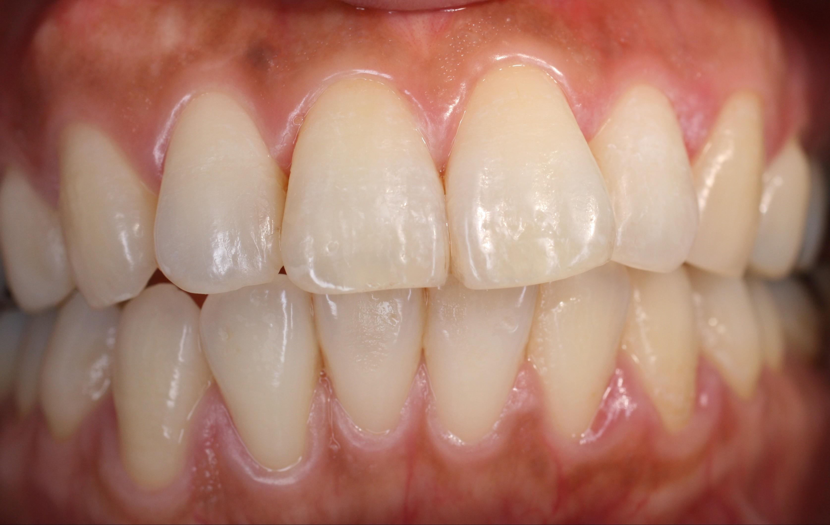 が 出る から 血 歯茎
