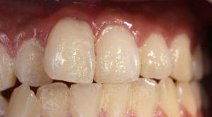 プラーク歯垢