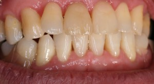 フレキサイト入れ歯