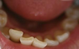 舌 が ピリピリ する