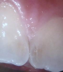 前歯の裏のむし歯