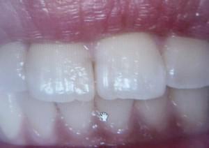 前歯の真ん中