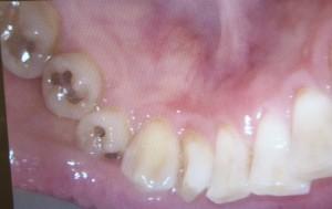 目立つ銀歯