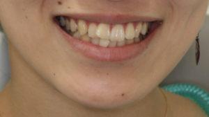 smile Tre