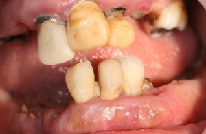 重度ひどい虫歯