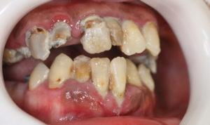 ひどい虫歯と歯周病